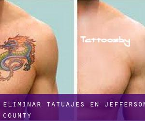 Eliminar tatuajes en Jefferson County